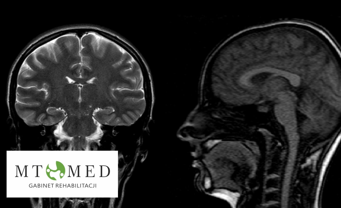 Udar mózgu- co warto wiedzieć, jak postępować, możliwości powrotu do sprawności.